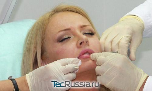 Дарья Пынзарь во время операции
