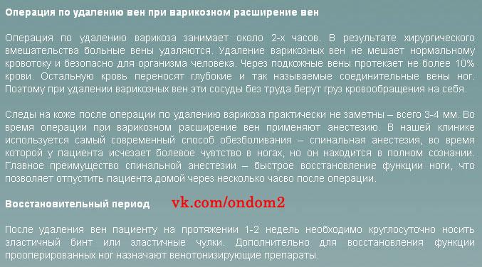 Статья про удаление варикозных вен.