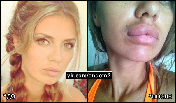 Виктория Боня (до и после укуса)