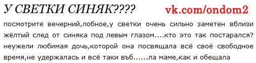 Слухи про синяк Светланы Михайловны Устиненко