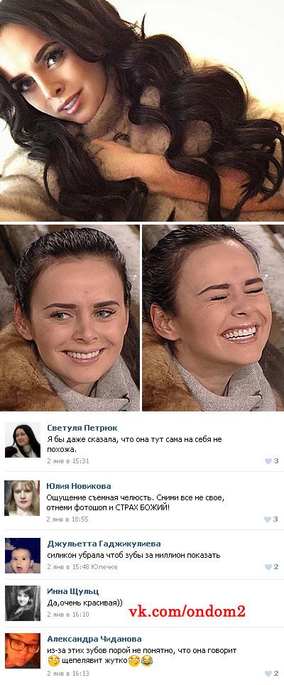 винировые зубы