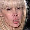 <b>Как у Светланы Михайловны сгнили все зубы + их фото</b>