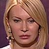 <b>Беременная Элина расцарапала лицо Александру Задойнову</b>