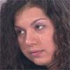 <b>Изуродованная Кривиковым кожа Дарьи Фроловой + фото ожогов</b>