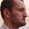 <b>Алексей Самсонов изменил форму носа + фото после операции</b>