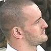 <b>Новый  нос Алексея Самсонова + фото ДО и ПОСЛЕ операции</b>