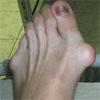 <b>Ступня Бузовой изуродована костяными шишками</b>